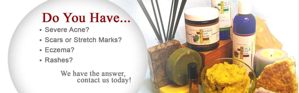 shea holistic aromatherapy natural healthy